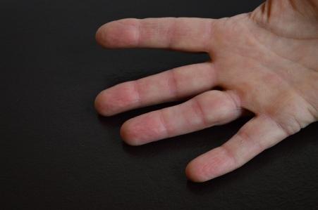 Trigger Finger 1