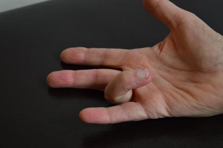 Trigger Finger 4