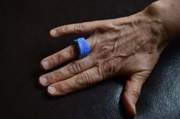 Trigger Finger MCP Splint Dorsal Aspect