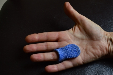 Trigger Finger MCP splint Palmar Aspect